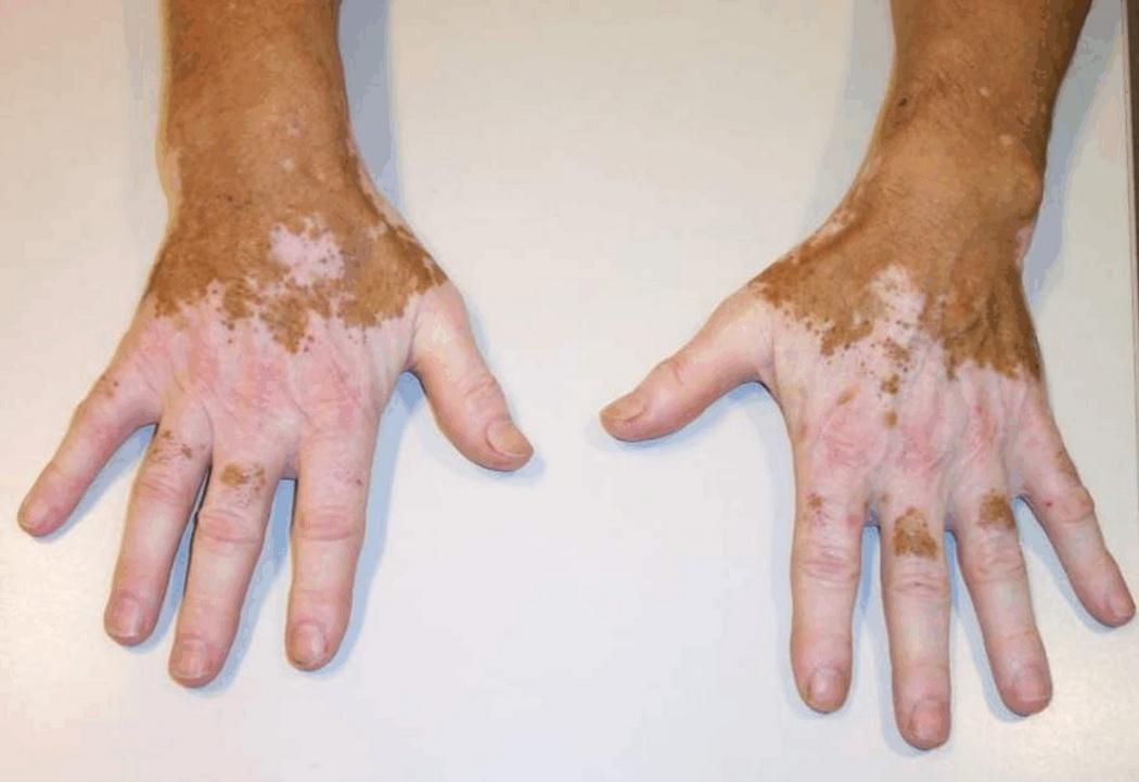 hudklåda utan utslag